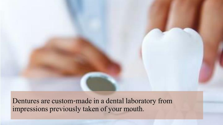 Dentures are custom-made in a dental laboratory from impressions previously taken of your mouth.