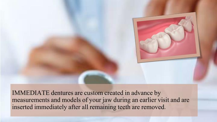 IMMEDIATE dentures are custom created in advance by measurements and models of your jaw during an earlier visit and are inserted immediately after all remaining teeth are removed.