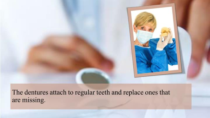 The dentures attach to regular teeth and replace ones
