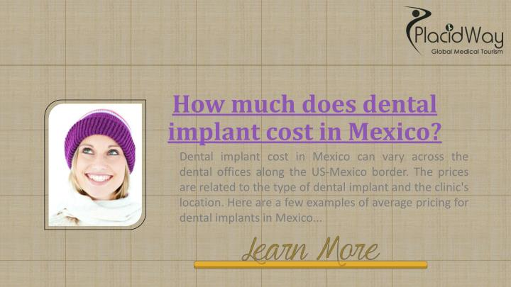 How much does dental implant cost in Mexico