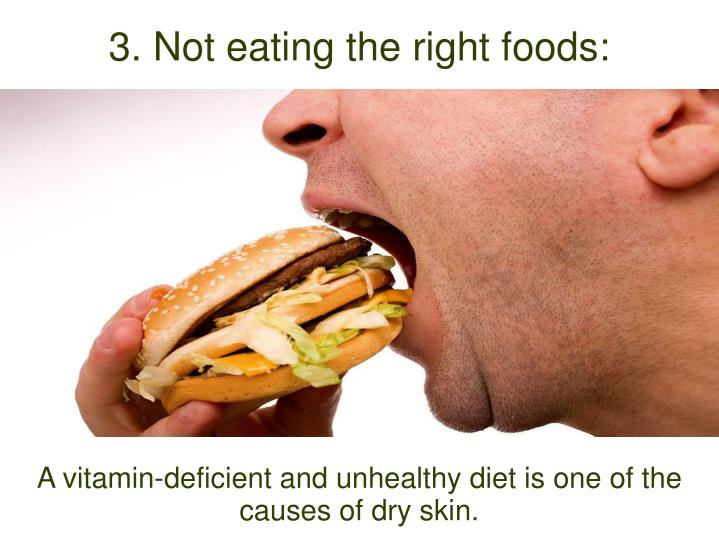 A vitamin-deficient and unhealthy diet is one of the causes of dry skin.