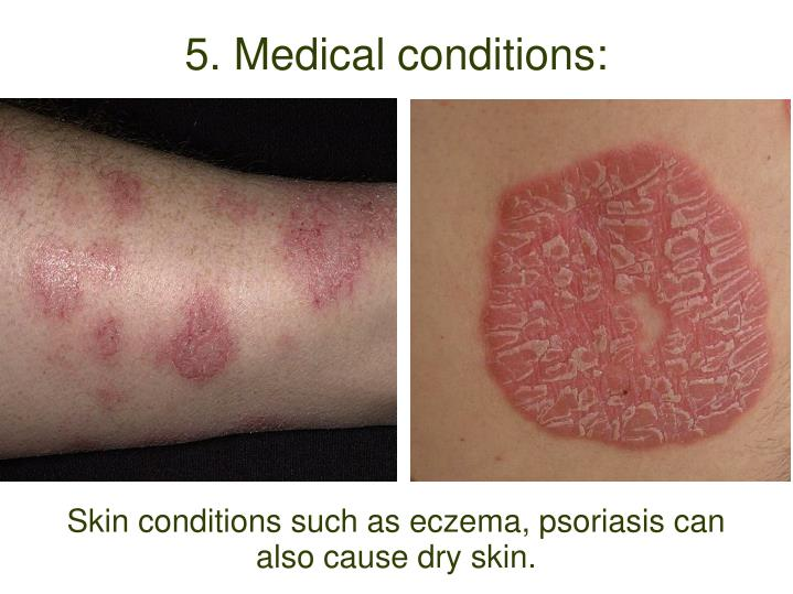 Skin conditions such as eczema, psoriasis can also cause dry skin.