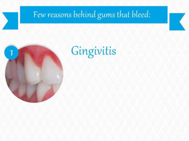Few reasons behind gums that bleed: