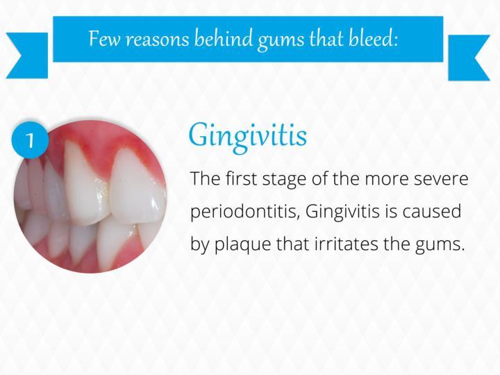 Few reasons behind gums that bleed: