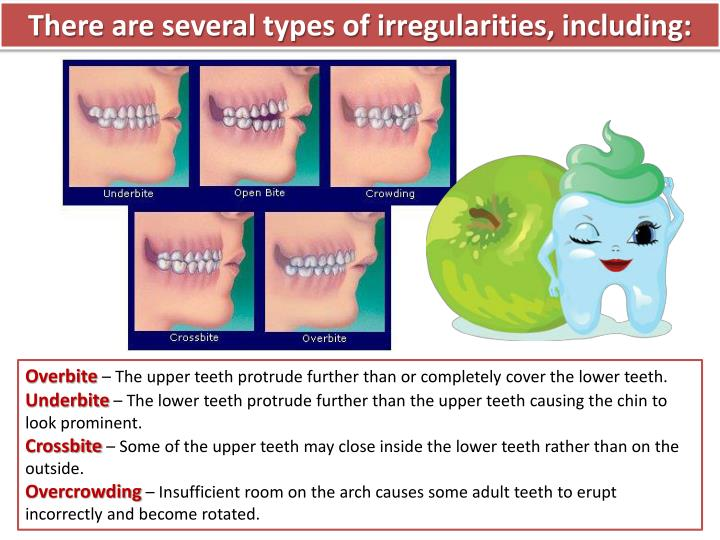 There are several types of irregularities, including: