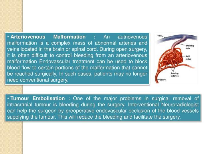 Arteriovenous Malformation :