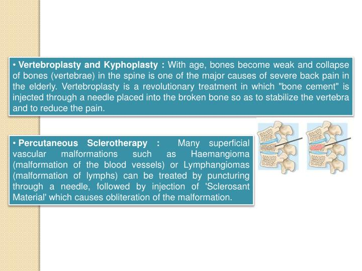 Vertebroplasty and Kyphoplasty :