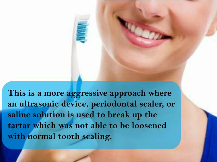 This is a more aggressive approach where an ultrasonic device, periodontal scaler, or saline solution is used to break up the tartar which was not able to be loosened with normal tooth scaling.