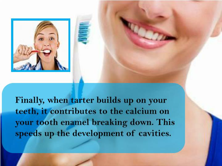 Finally, when tarter builds up on your teeth, it contributes to the calcium on your tooth enamel breaking down. This speeds up the development of cavities.