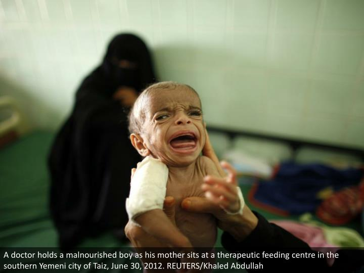 A doctor holds a malnourished boy as his mother sits at a therapeutic feeding centre in the southern Yemeni city of Taiz, June 30, 2012. REUTERS/Khaled Abdullah