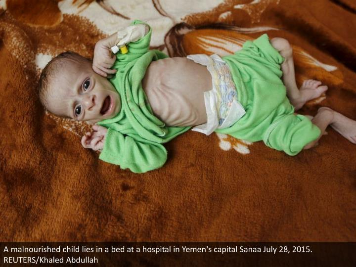 A malnourished child lies in a bed at a hospital in Yemen's capital Sanaa July 28, 2015. REUTERS/Kha...