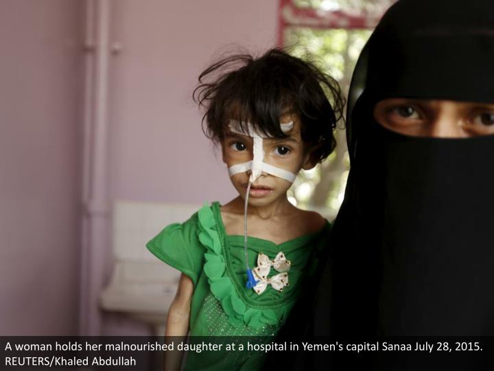 A woman holds her malnourished daughter at a hospital in Yemen's capital Sanaa July 28, 2015. REUTER...