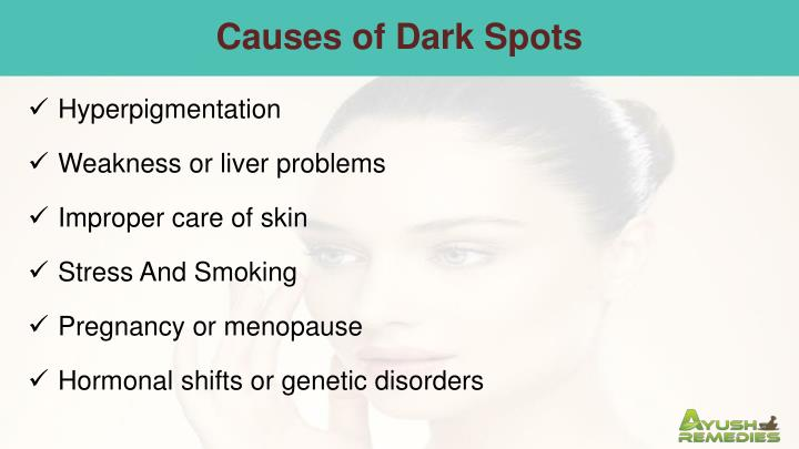Causes of Dark Spots