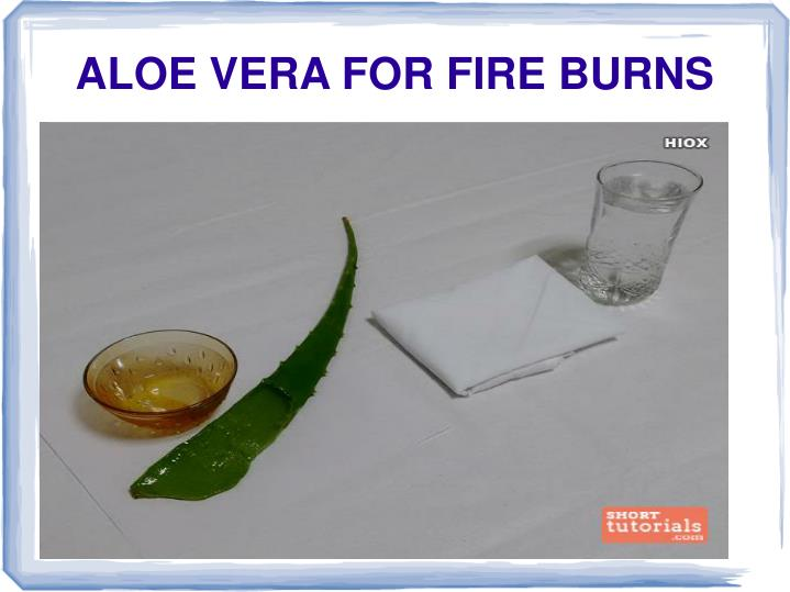ALOE VERA FOR FIRE BURNS