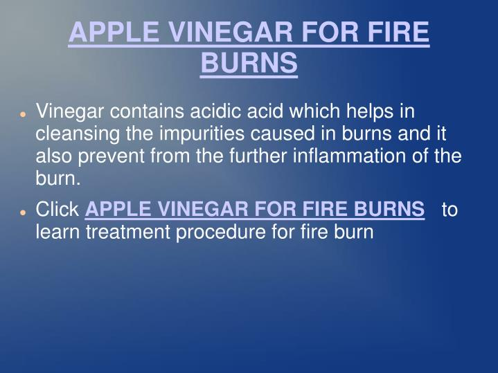 APPLE VINEGAR FOR FIRE BURNS