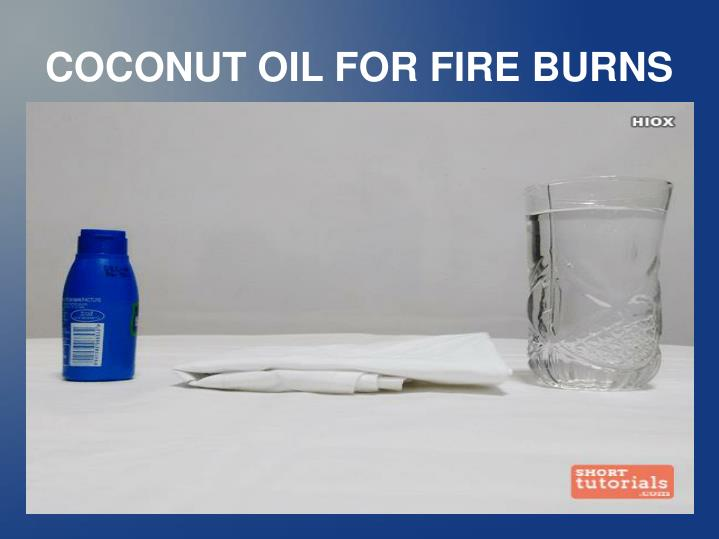 COCONUT OIL FOR FIRE BURNS