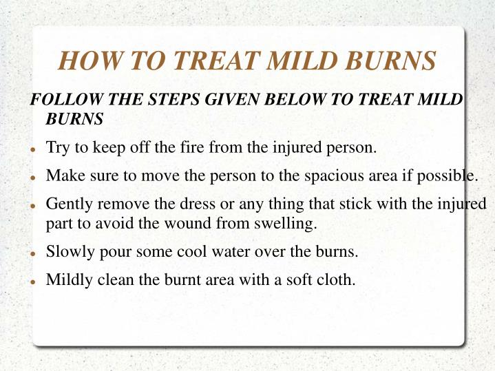 How to treat mild burns