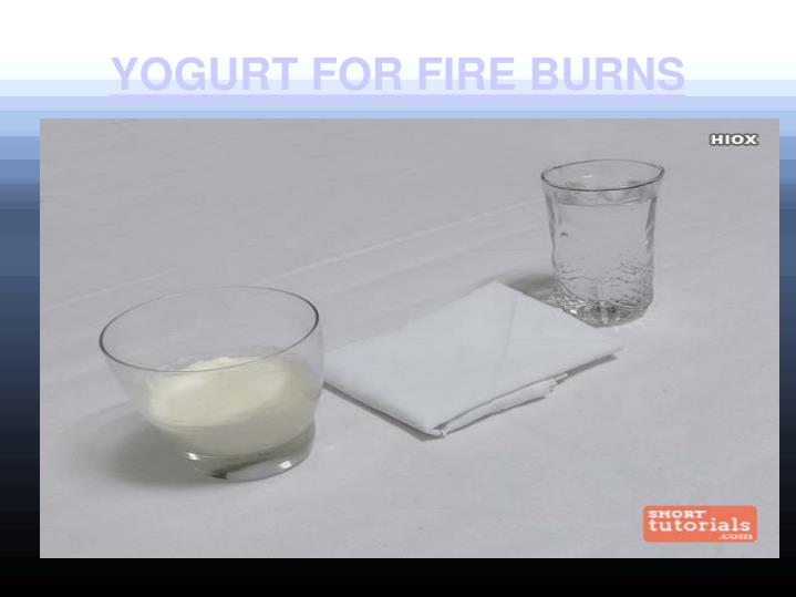YOGURT FOR FIRE BURNS