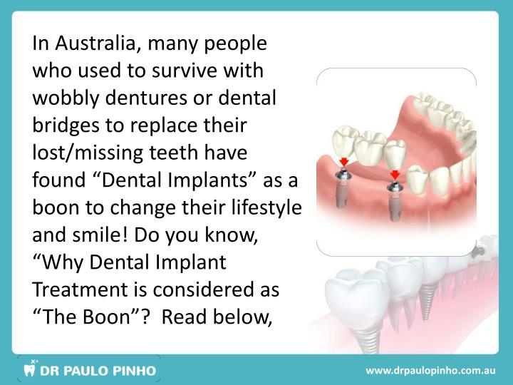 In Australia, many people who used to survive with wobbly dentures or dental bridges to replace thei...