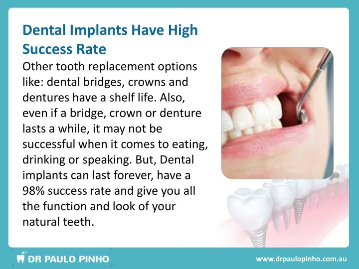 Dental Implants Have High Success Rate
