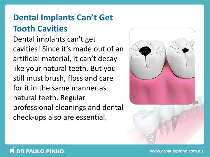 Dental Implants Can't Get Tooth Cavities