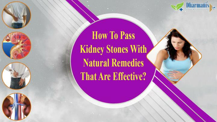 How to pass kidney stones with natural remedies that are effective
