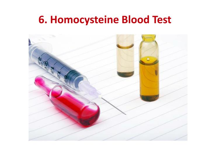 6. Homocysteine Blood Test