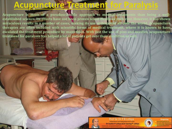 Acupuncture treatment for paralysis