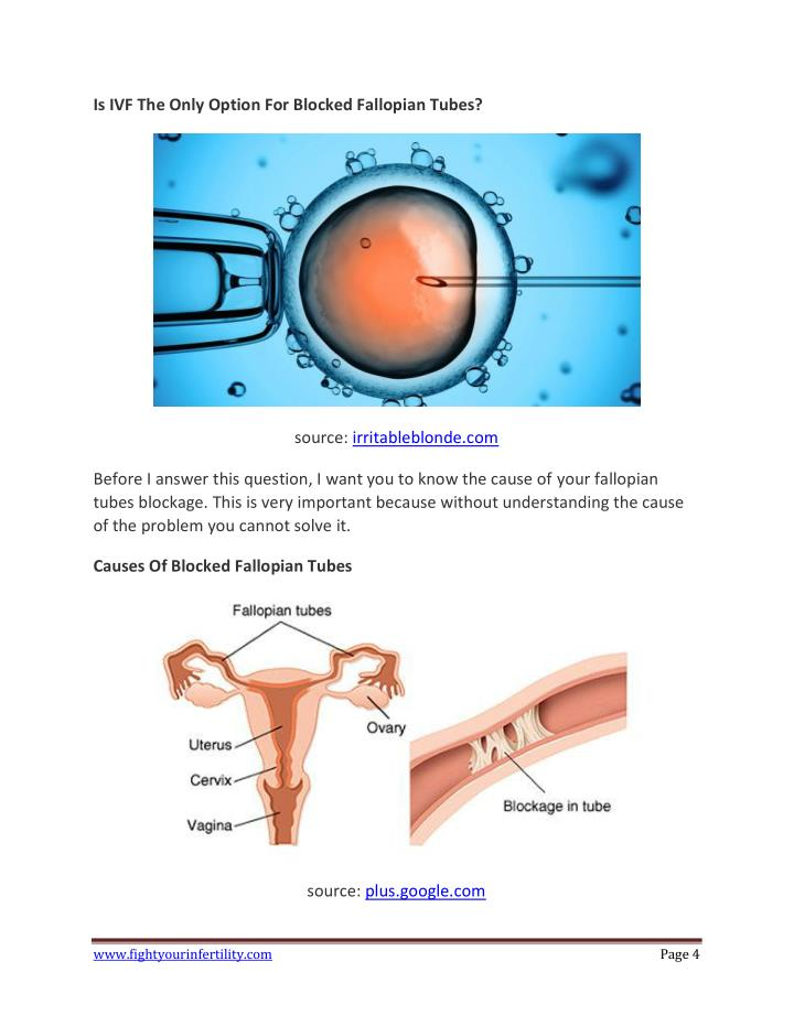 Is IVF The Only Option For Blocked Fallopian Tubes?