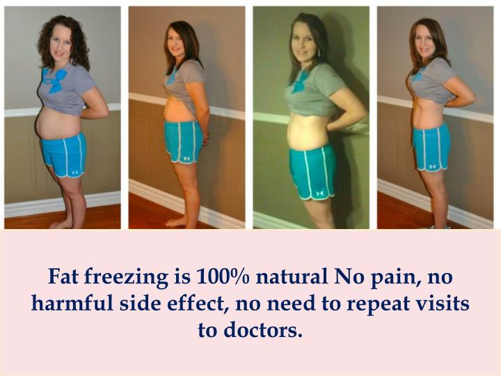 Fat freezing is 100% natural No pain, no harmful side effect, no need to repeat visits to doctors.