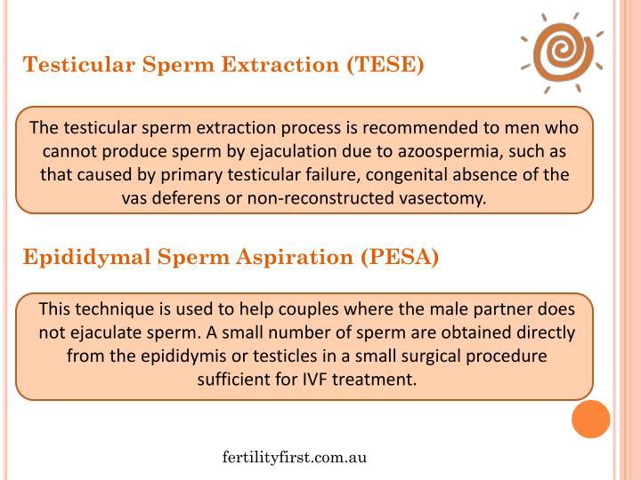 Testicular Sperm Extraction (TESE)
