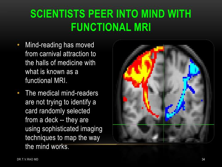 SCIENTISTS PEER INTO MIND WITH