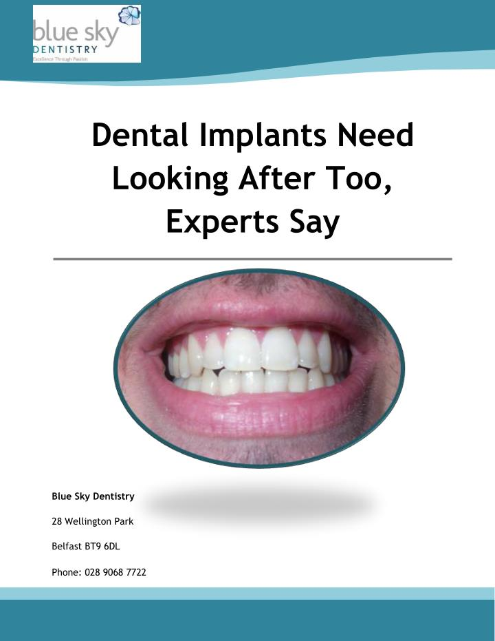 Dental Implants Need