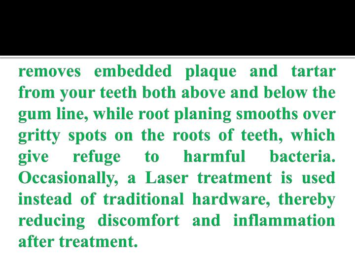 removes embedded plaque and tartar from your teeth both above and below the gum line, while root