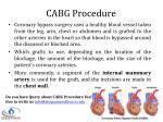 cabg procedure