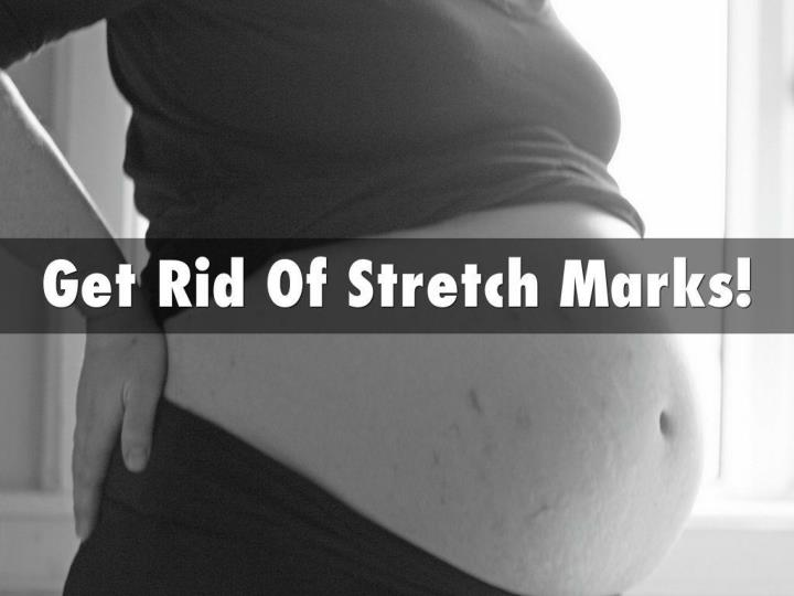 Stretch marks how to get rid of stretch marks