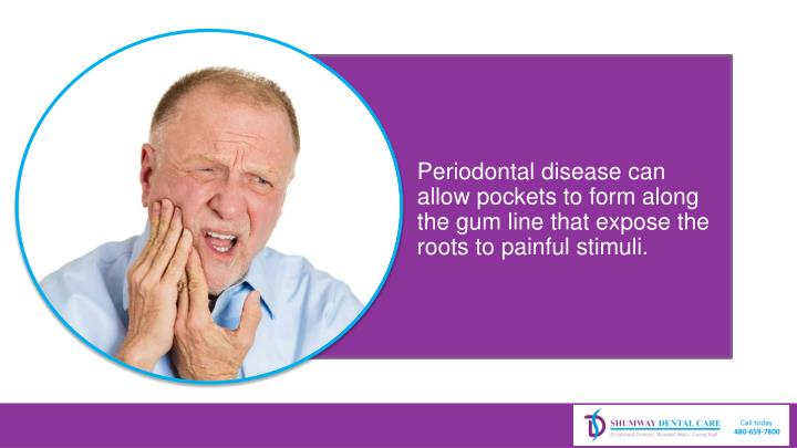 Periodontal disease can allow pockets to form along the gum line that expose the roots to painful stimuli.