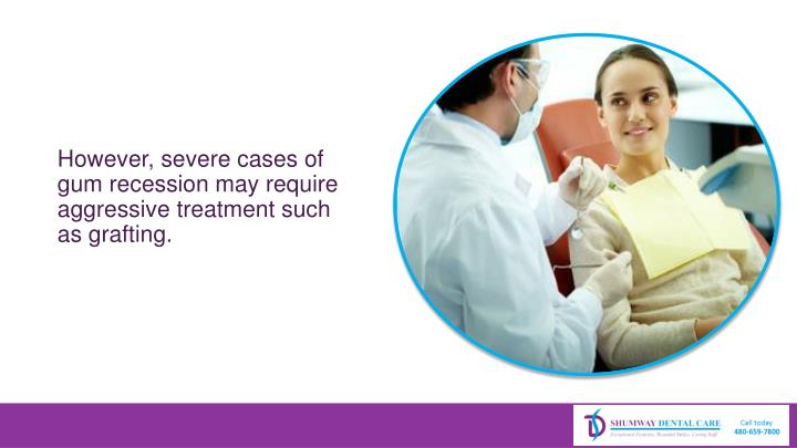 However, severe cases of gum recession may require aggressive treatment such as grafting.