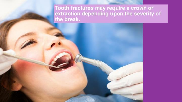 Tooth fractures may require a crown or extraction depending upon the severity of the break.