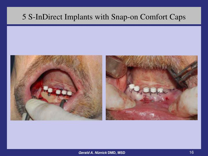 5 S-InDirect Implants with Snap-on Comfort Caps