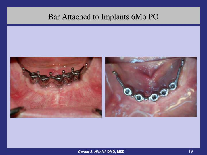 Bar Attached to Implants 6Mo PO