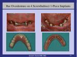 bar overdenture on 4 screwindirect 1 piece implants5