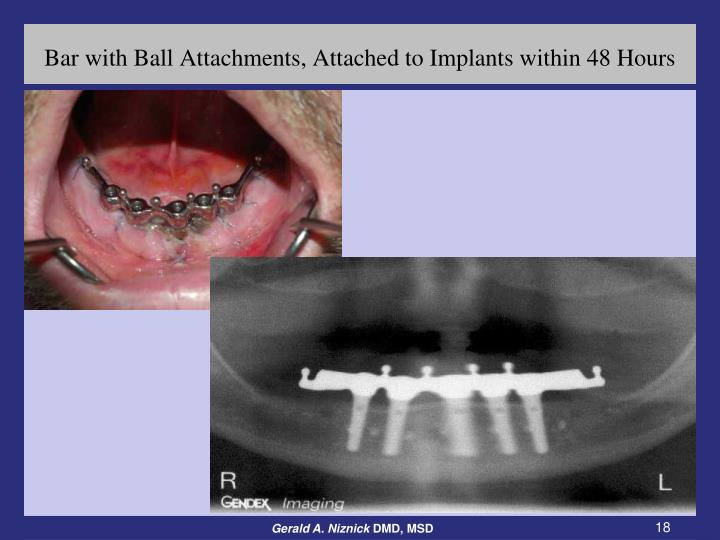 Bar with Ball Attachments, Attached to Implants within 48 Hours