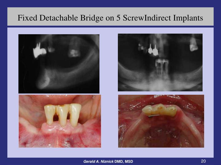 Fixed Detachable Bridge on 5 ScrewIndirect Implants
