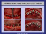 fixed detachable bridge on 5 screwindirect implants2