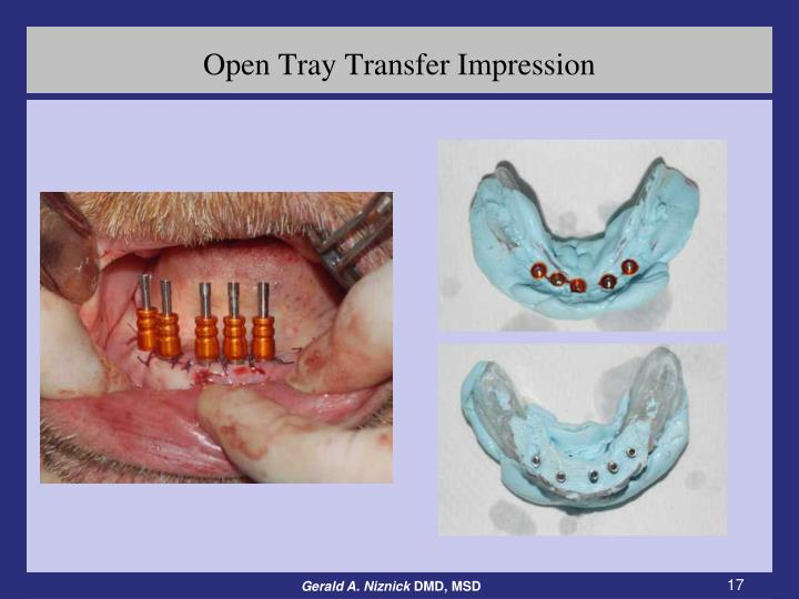 Open Tray Transfer Impression