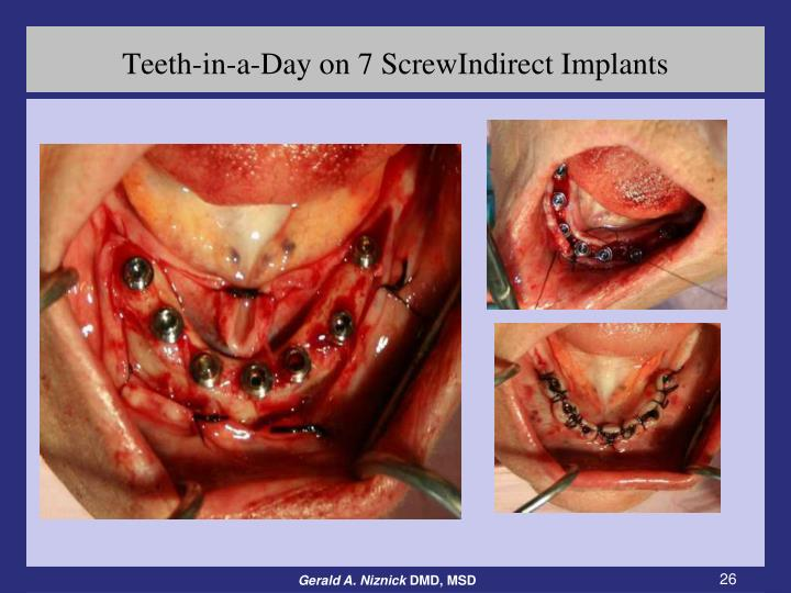 Teeth-in-a-Day on 7 ScrewIndirect Implants