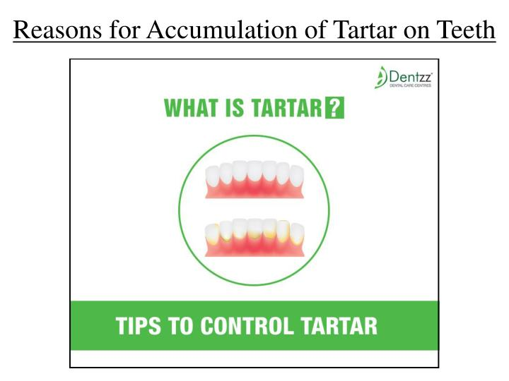 Reasons for Accumulation of Tartar on Teeth