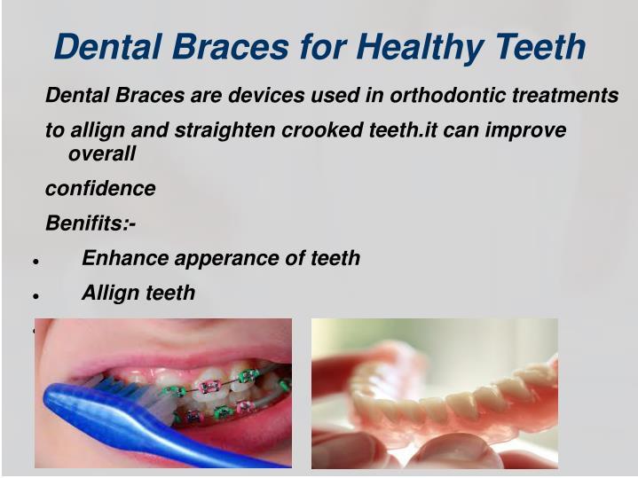 Dental Braces for Healthy Teeth