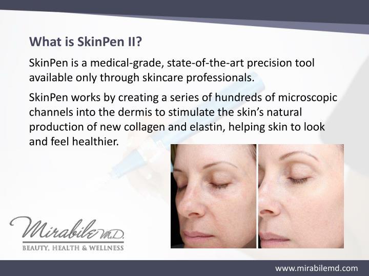 What is SkinPen II?